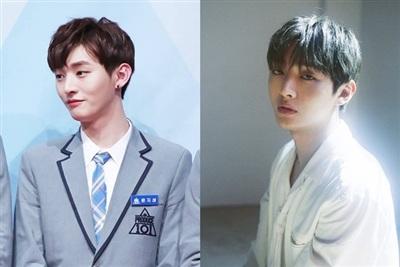 Nhìn lại sự khác biệt của các thành viên Wanna One sau một năm chiến thắng Producer 101 7