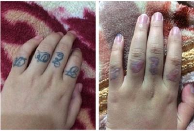 Bạn T.T.H từng phải gánh hậu quá đáng tiếc khi quyết định xóa hình xăm trên các ngón tay