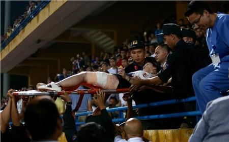 CĐV bị thương do pháo sáng trong trận Hà Nội FC thắng Nam Định 6-1.