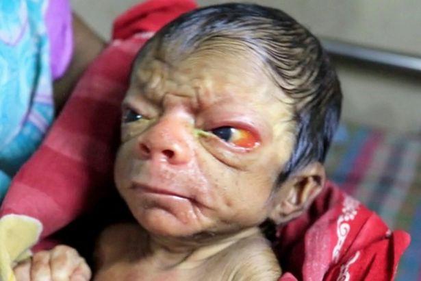 Cả ê-kíp bác sĩ đỡ đẻ choáng váng khi em bé chào đời trong hình hài của một ông lão 80 tuổi 1