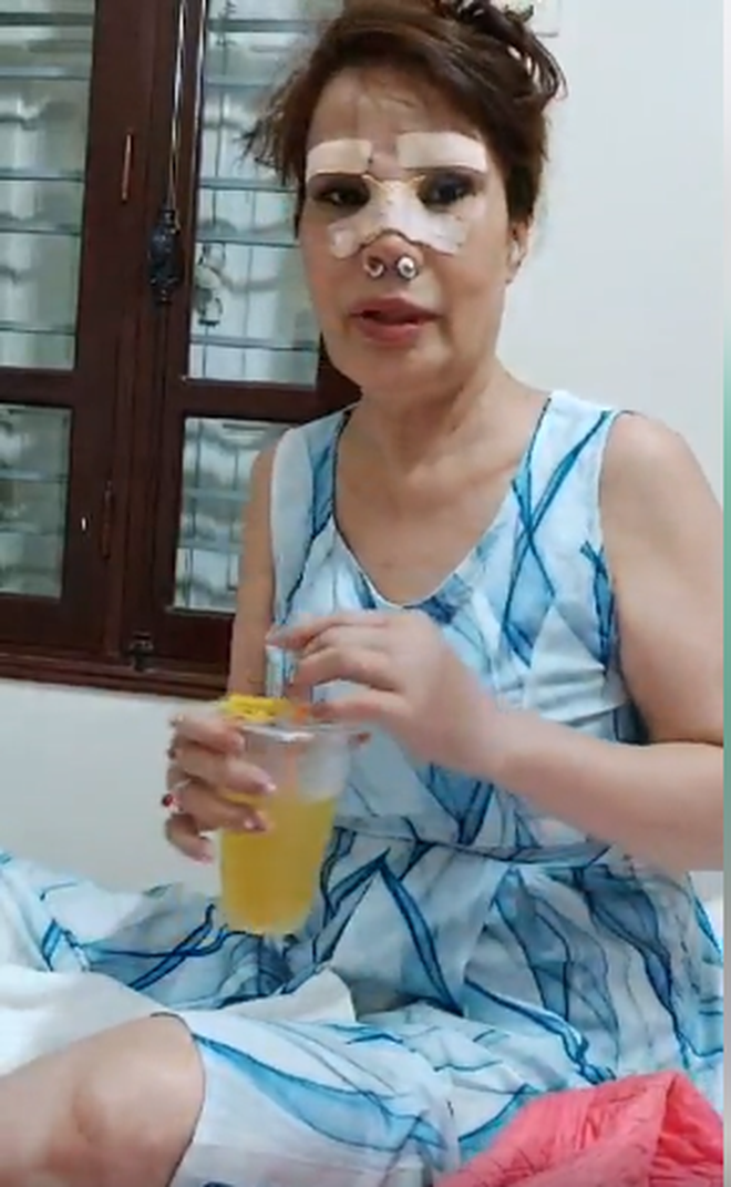 Chồng trẻ đưa 'cô dâu 62 tuổi' ở Cao Bằng đi tân trang nhan sắc, nhìn ảnh không khỏi 'rùng mình' 2