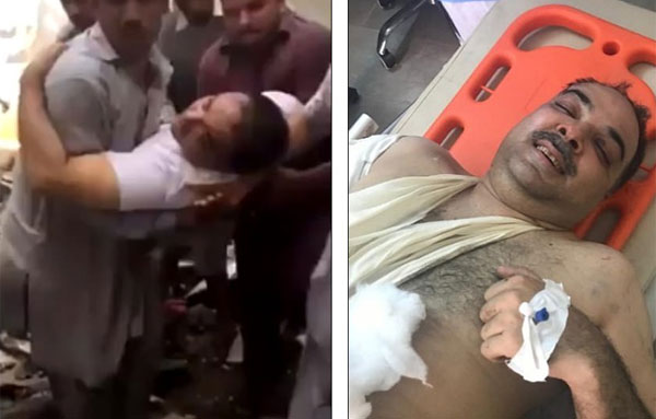 Chủ tịch ngân hàng của bang Punjab, Zafar Masood là một trong 2 người sống sót và được cứu khỏi đám cháy tại hiện trường vụ máy bay Pakistan đâm vào khu dân cư đông đúc chiều 22/5. Ảnh: Internet