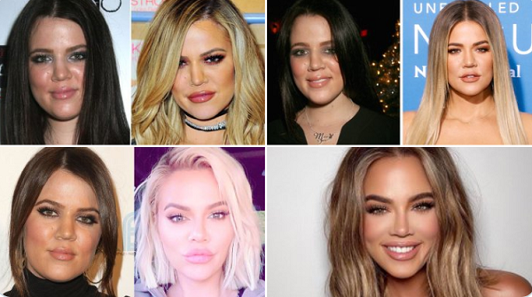 Dung nhan của Khloe Kardashian thay đổi theo từng năm.