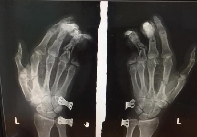 Phim chụp bàn tay của anh D sau vụ tai nạn nổ điện thoại.