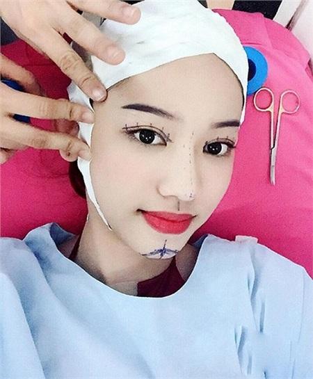 Thúy Vi không tiếc tay chi tiền tỷ phẫu thuật thẩm mỹ, nhưng lại nhận mình là 'hot girl sống khổ nhất Việt Nam' 2