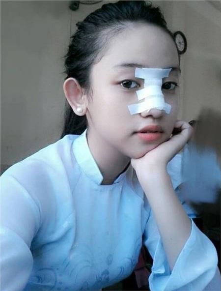 Thúy Vi không tiếc tay chi tiền tỷ phẫu thuật thẩm mỹ, nhưng lại nhận mình là 'hot girl sống khổ nhất Việt Nam' 5