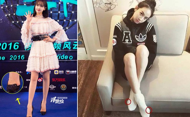 Xinh đẹp là vậy nhưng dàn mỹ nhân Hoa ngữ lại khiến dân tình bị sốc với bàn chân biến dạng vì giày cao gót 1