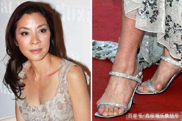 Do học múa từ nhỏ, cùng với việc ép chân trên những đôi giày cao khiến khung xương bàn chân bị biến dạng.