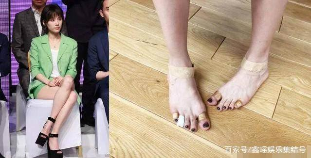 Bàn chân chằng chịt vết thương do hậu quả của việc đi giày cao gót.