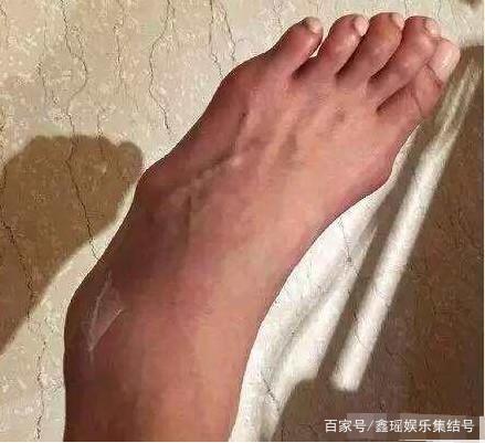 Ngón chân sưng phồng, xương bàn chân lộ ra ngoài một cách rõ rệt.
